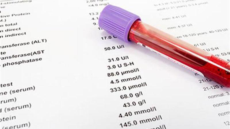 آزمایش تشخیص سفلیس تناسلی