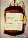 محصولات خون