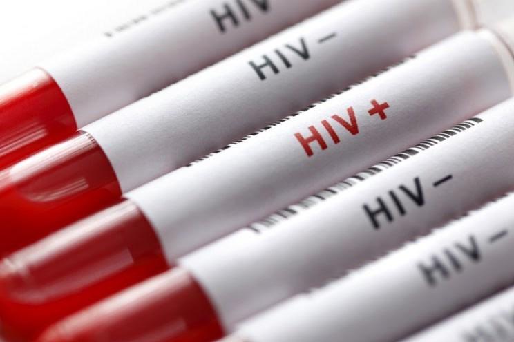 نحوه تشخیص بیماری ایدز در کودکان