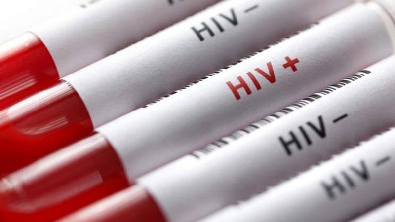 خطر انتقال ویروس ایدز