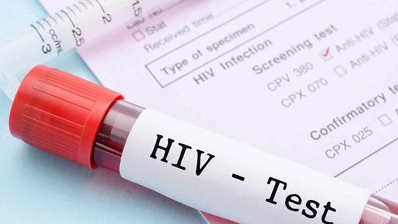تست ایدز پس از دوران پنجره ای ایدز