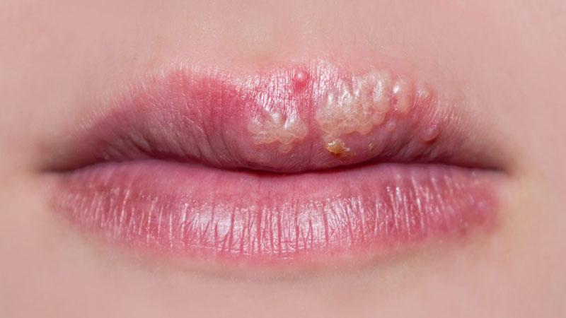 عفونتها، مهمترین عامل بیماریهای جنسی