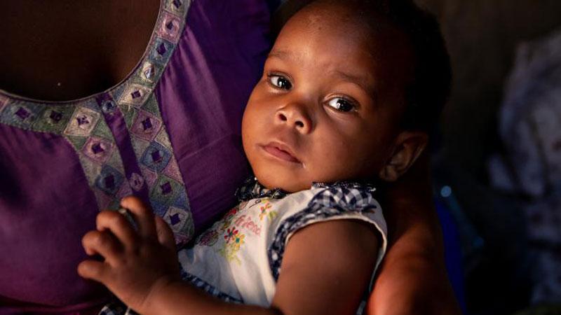 التهابات پوستی از نشانه های ایدز در کودکان