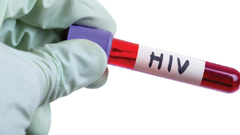 تفاوت دوره کمون و پنجره ایدز