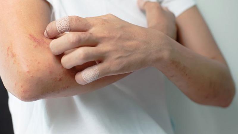 خارش پوست از مهم ترین علائم هپاتیت