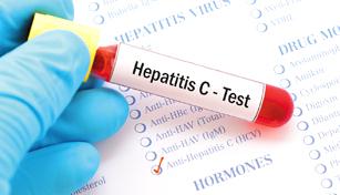 هپاتیت سی از راه های انتقال تا روش درمان