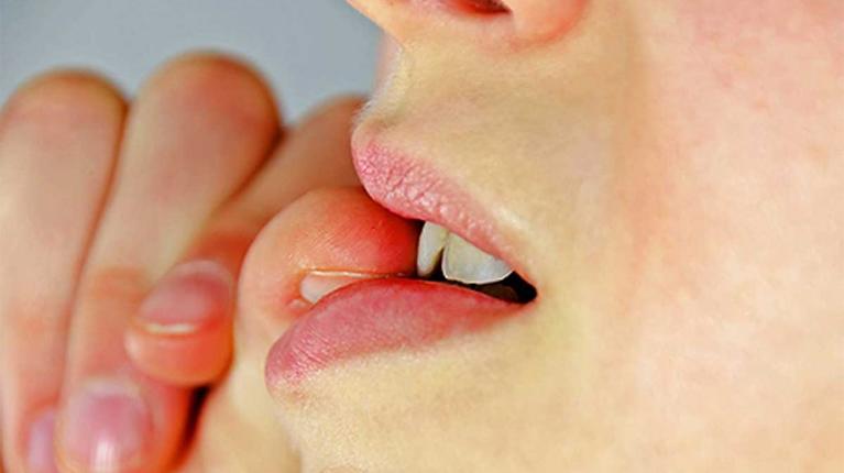 زگیل دهانی چیست