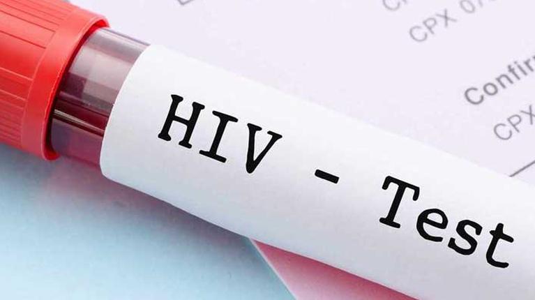منفی بودن آزمایش ایدز