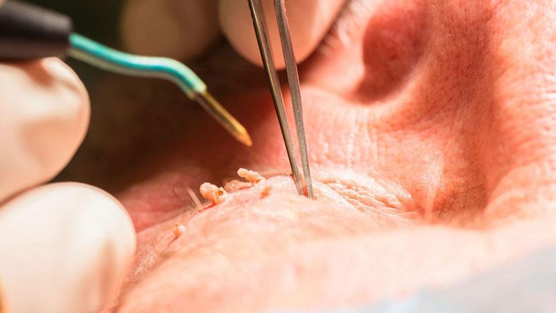 زگیل مقعد چطور درمان می شود؟
